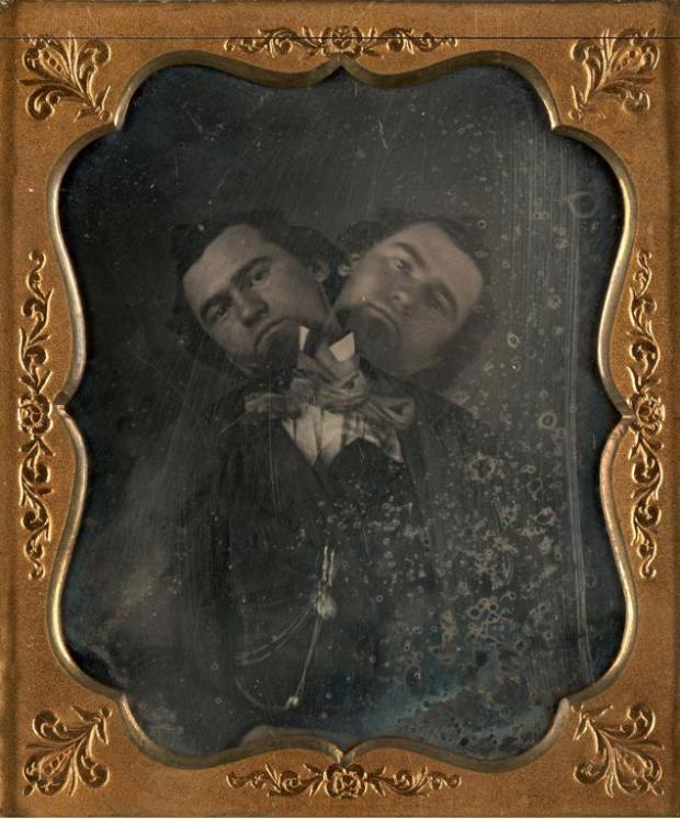 Two-Headed-Man-1855